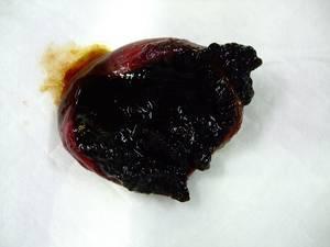 胆嚢粘液嚢腫